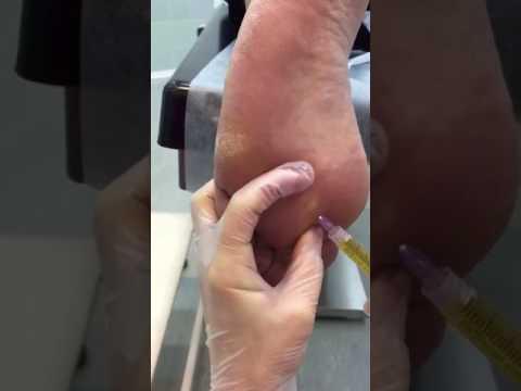 Articulațiile piciorului doare ce să facă