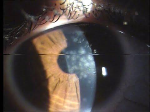 A látást javító kenőcs