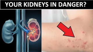 10 Signs Your Kidneys Are Crying For Help