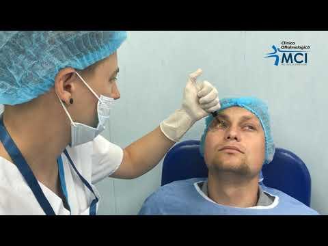 Tratamentul cu laser varicoză varicoză sau scleroterapie
