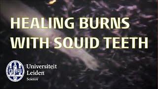 Healing burns with squid teeth - iGEM Leiden 2019