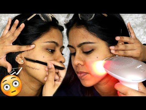 Dermatite de atopic no fórum de olhos