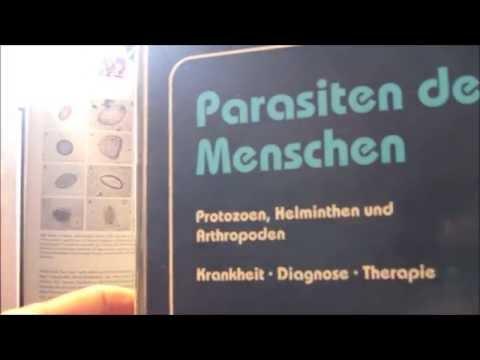 Die Parasiten aus den Konserven