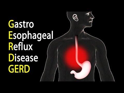Video GERD - Gastroesophageal Reflux Disease or Gastric Reflux, Animation.