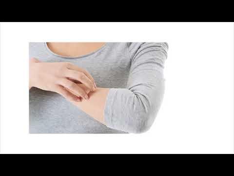 La dermatite di atopic dove rivolgersi