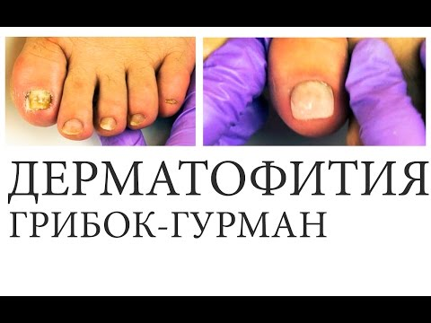 Die wellenförmigen Nägel der Grund die Behandlung
