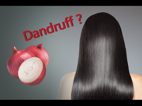 Video How to treat Dandruff with Onions