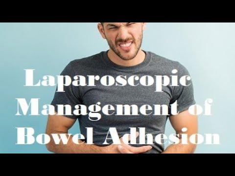 Postępowanie laparoskopowe ze zrostami jelita cienkiego