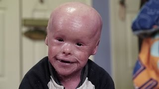 נולד קצת אחרת: התינוק שנולד עם מחלת העור הנדירה >>