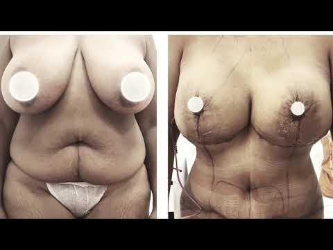 Olej zwiększa piersi