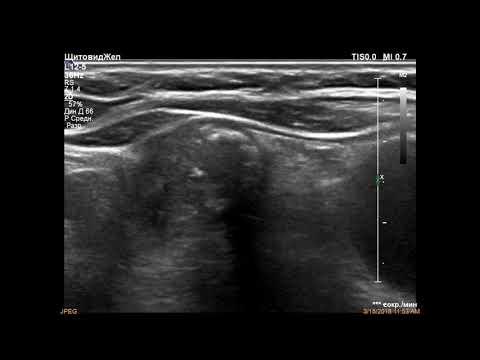 Предстательная железа нормальные