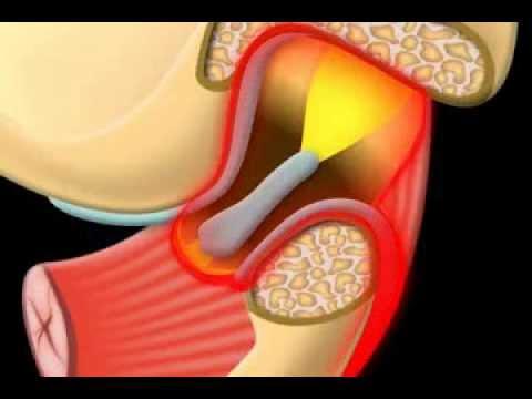 Gli effetti della osteoartrite sul retro