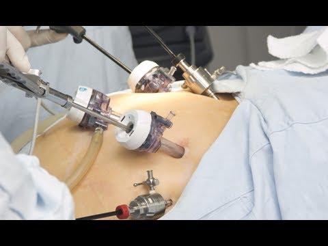 Durerea în articulațiile picioarelor anesteziază