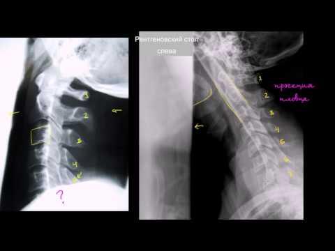 Адекватность рентгеновского снимка шейного отдела позвоночника в боковой проекции