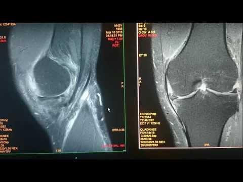 Ejercer la terapia de osteocondrosis de la rodilla vídeo