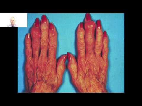 Quels onguents appliquer à leczéma et la dermatite