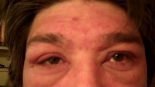 Caution; Disturbing, Poison oak outbreak on the  face