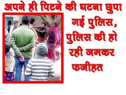 नूरा से पिटने की बात छुपा गई पुलिस, भले आदमी पर लगा देती गंभीर मुकदमा