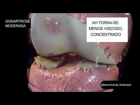 Tratamentul articulației pre-genunchi de gradul 3