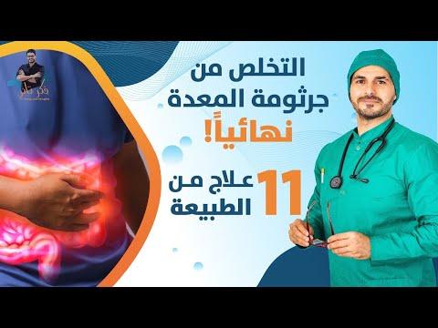 ٥٣- علاج جرثومة المعده السحري من الطبيعة - احدي عشر علاجا للتخلص منها في  شهر
