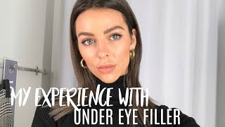 Under Eye Filler Injections | My experience + before and after