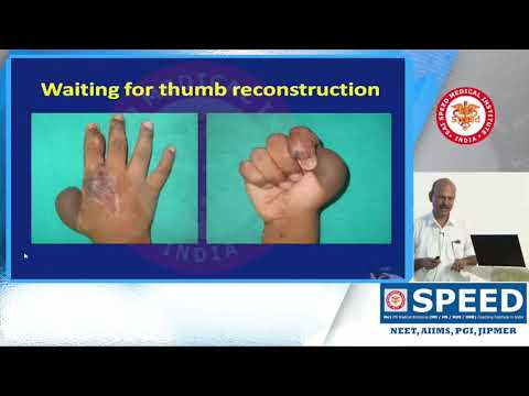 MCH – FACE AND HAND TRANSPLANTATION