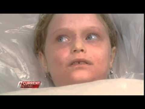 O que pode ser feito no eczema