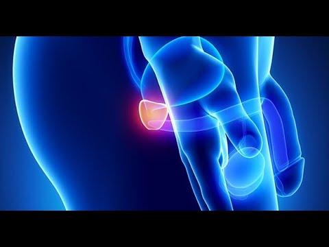 Quoi de neuf dans le traitement de ladénome de la prostate