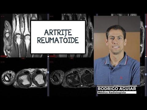 Cum se tratează articulațiile pentru artroză
