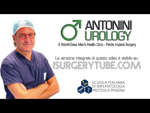 Enhancers prostatico come utilizzare il video