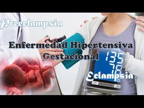 Hipertensión y su tratamiento