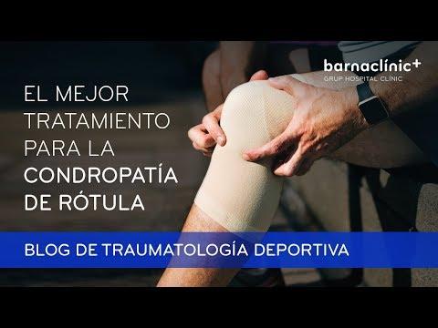 Condropatía Rotuliana Mejor Tratamiento Recuperación Y Causas Blog Del Dr Sergi Sastre Blog