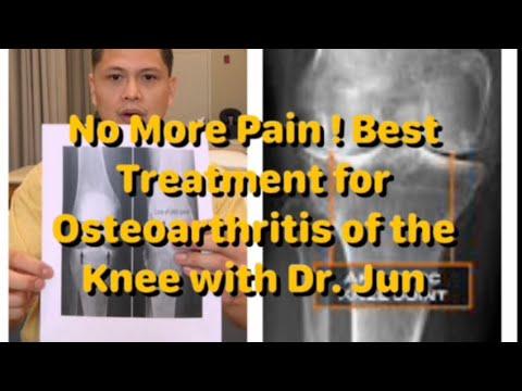 A kéz arthrosisának és kezelésének áttekintése