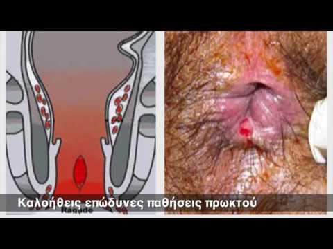 Μαγνήτη νεοδυμίου από προστατίτιδα