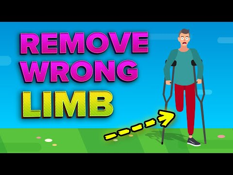 Surgeons Remove the Wrong Limb (Insane Surgical Mistakes)