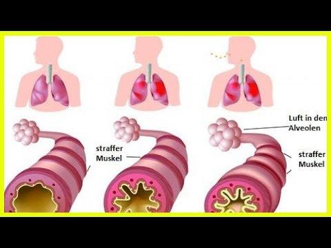 Die Würmer ljamblii die Symptome