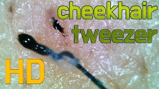 #28 Pull out Cheekhair /  Close up 500X - hair Removal