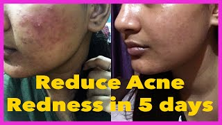 How to get Rid of Acne Redness Naturally at home | Somi Singh