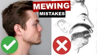 MEWING MISTAKES | Why You're Not Seeing Jawline Improvements