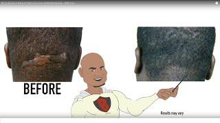 Razor Bump on Back of Head Cure; Acne Keloidalis Nuchae - AKN Cure