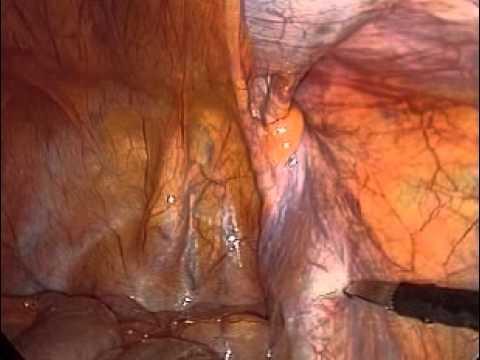 Alcune candele per il trattamento della prostatite