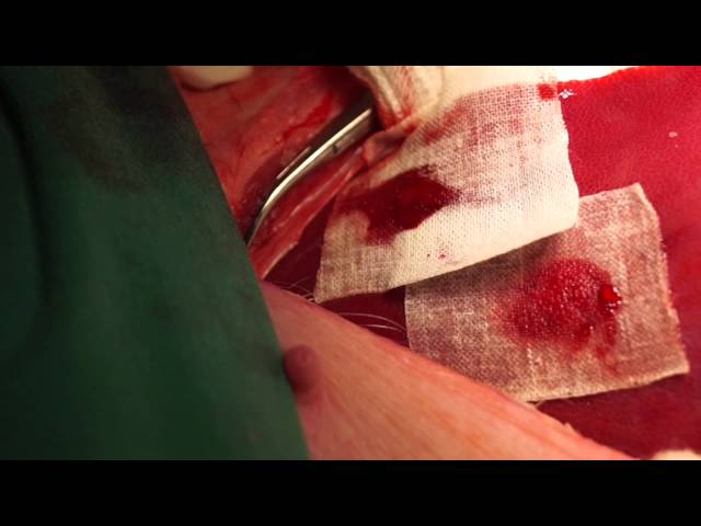 Liver Punch Biopsy and Traumatic Injury