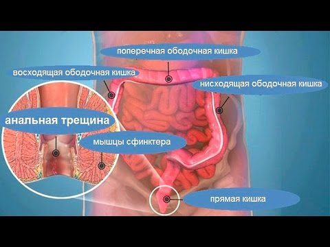 Не могу убрать воспаление в предстательной железе