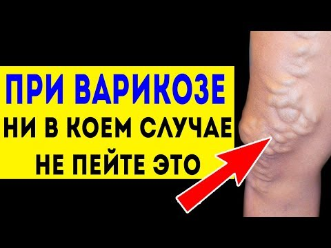 НИКОГДА не пейте это при ВАРИКОЗЕ (варикозное расширение вен) Лечение народными средствами