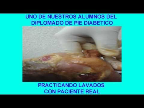 El efecto sobre los músculos de la diabetes