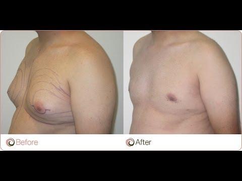 Les ventes de poitrine implantov