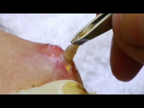 Paglilinis resulta parasito
