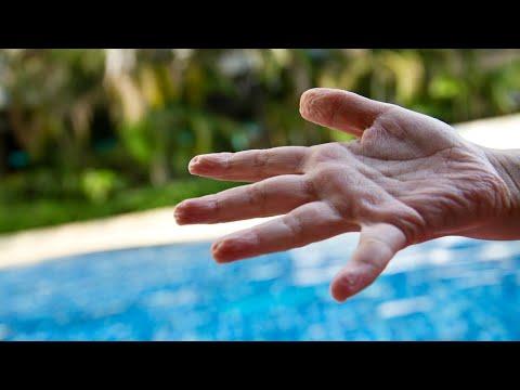 Frisoane și umflarea articulațiilor