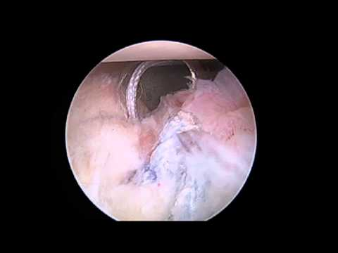 Massive Labral Tear -- Shoulder