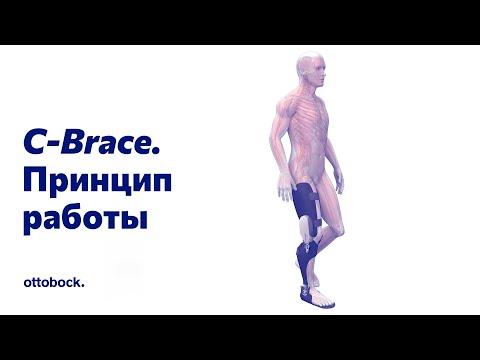Принцип работы аппарата на всю ногу C-Brace®